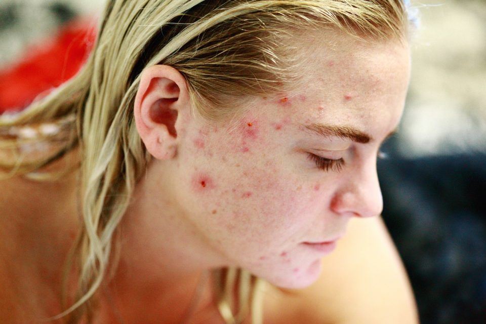 What's the Best Birth Control Pills to treat Acne in Women